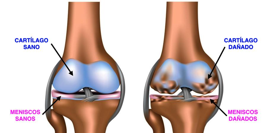 Gonartrosis y dolor