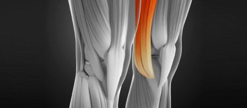 Tendinitis de la pata de ganso: ¿Cómo puedo con la fisioterapia recuperar esta lesión?